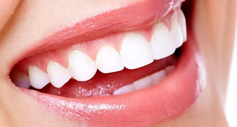 Il problema dei costi nei servizi odontoiatrici