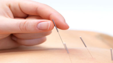 terapia agopuntura