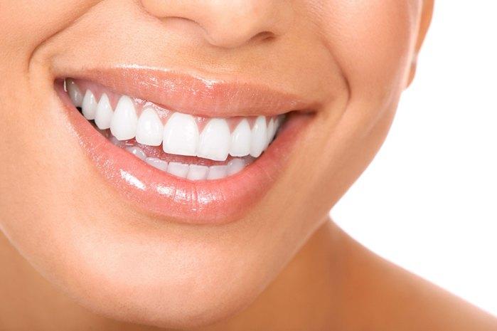 Tecnica di applicazione delle faccette dentali