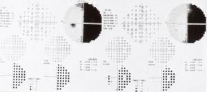 esame vista campo visivo computerizzato
