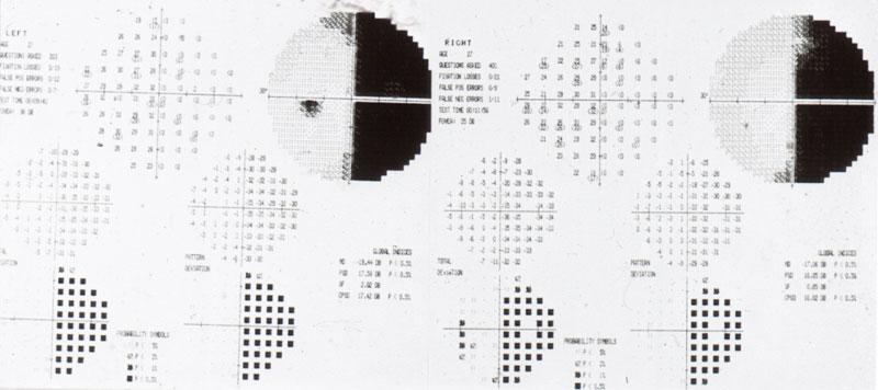 Cosa si intende per campo visivo – cvc test