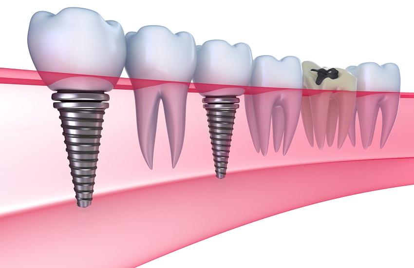 Denti fissi senza stress